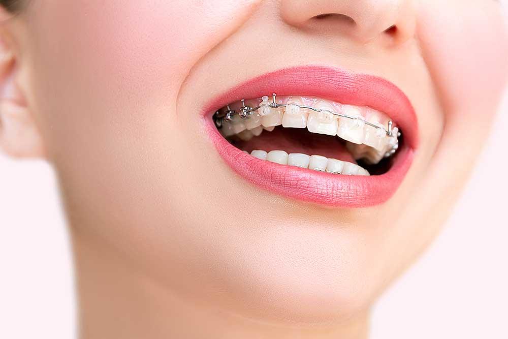 ortodoncia en Santa Cruz de la Palma, ortodoncia en Los Llanos